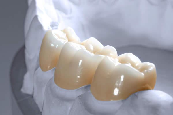 zirkon-zahnersatz-dentes